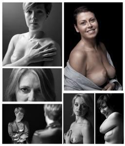 cicatrici di donna